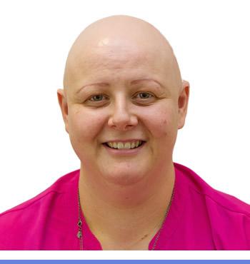 alopecia-1-1