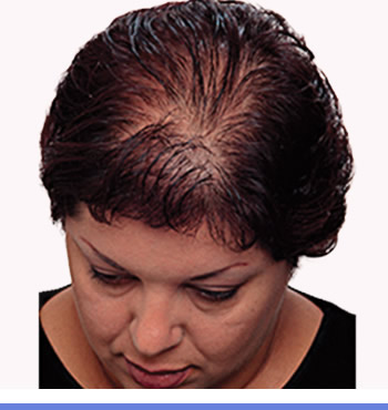 hair-thinning-1-1