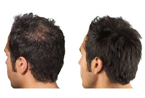 Men-And-Women - Roches Hair-Thinning