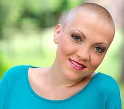Alopecia Patients