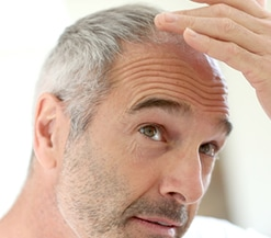 hair thinning, cancer care expert